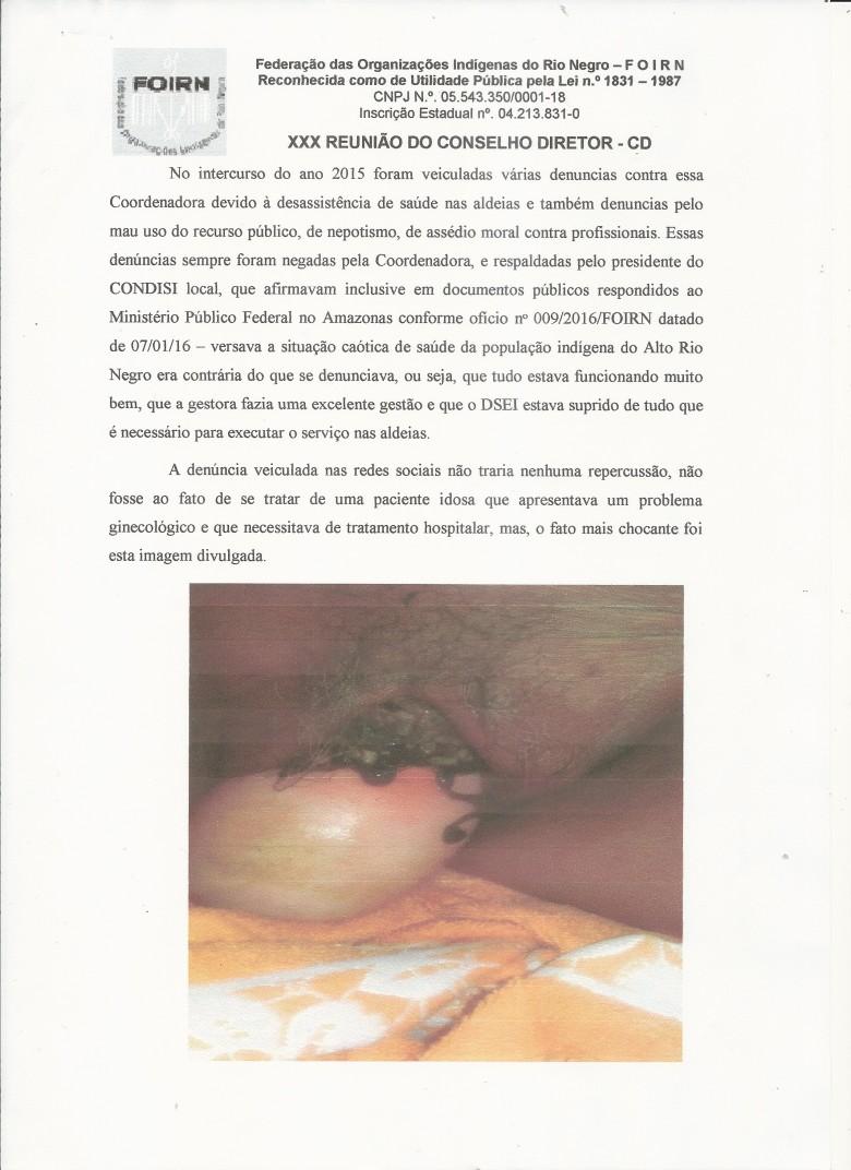 Carta Denúncia XXX CD FOIRN_Saúde Indígena -2